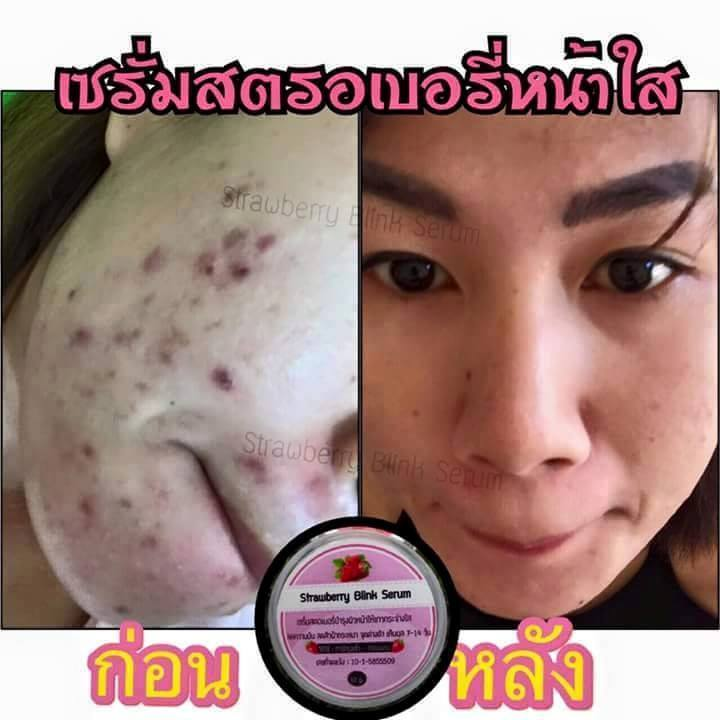 รีวิวสตรอเบอรี่ บริ้ง เซรั่ม (Strawberry Blink Serum)4