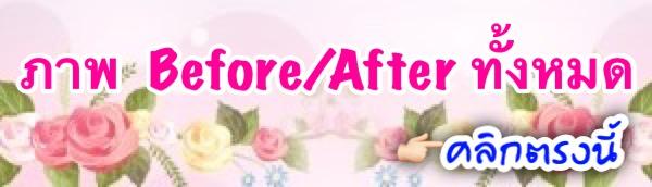 ภาพ Before/After ทั้งหมด คลิกที่นี่
