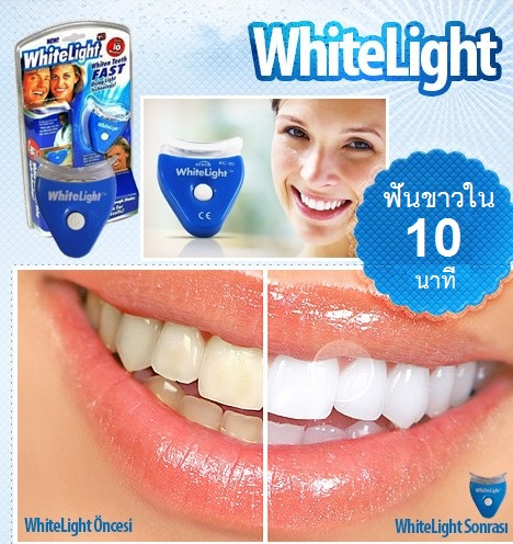 White Light ชุดฟอกสีฟันขาว ด้วยแสง ทำเองได้ที่บ้าน ตัวช่วยให้ฟันคุณขาวสวย ยิ้มได้อย่างมั่นใจ ด้วยชุด ฟอกฟันขาว ด้วยแสง เห็นผลจริงใน 10 นาที