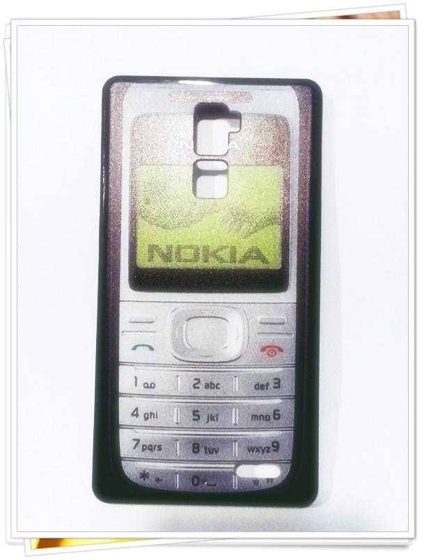 (พร้อมส่ง)เคสมือถือ Case OPPO R7 Plus เคสพลาสติกขอบนิ่มลาย Nokia